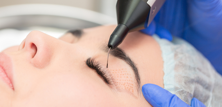 plasma eye lift in Dubai