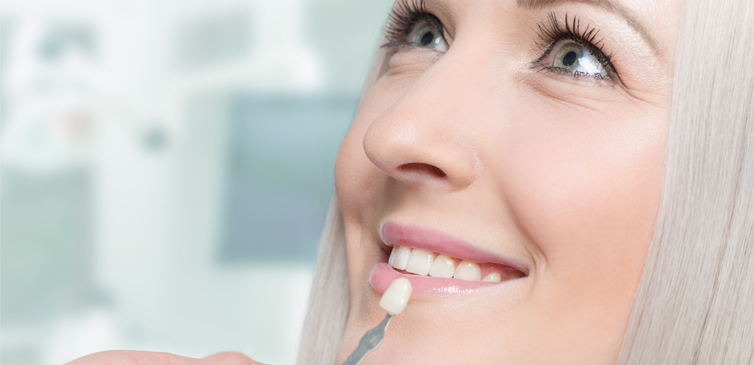 Dental veneers and lumineers Dubai